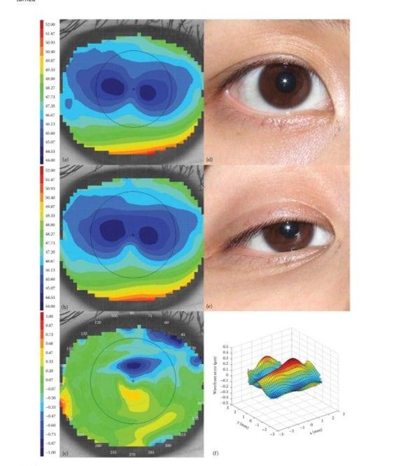 Handbook of Visual Optics, Two-Volume Set