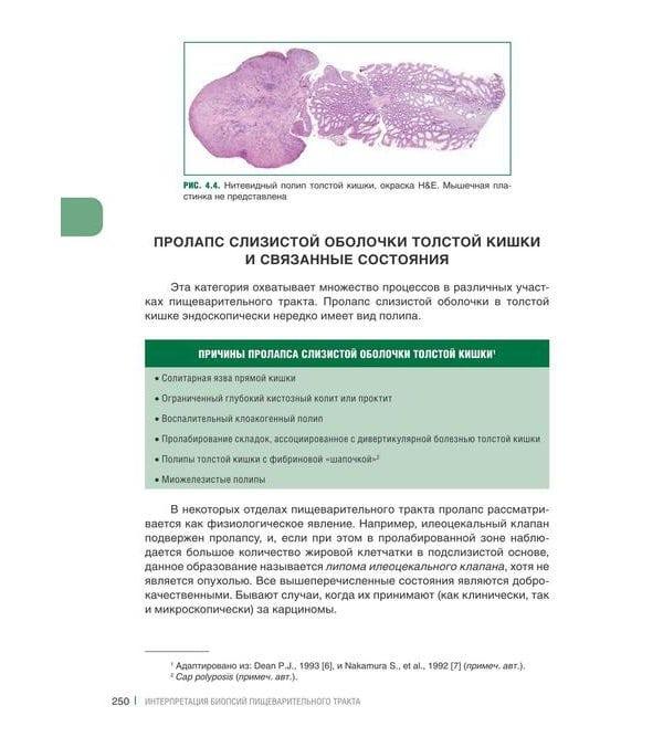 Интерпретация биопсий пищеварительного тракта. Том 2. Новообразования