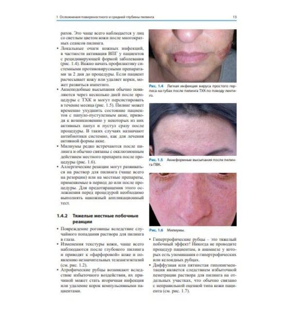 Лечение осложнений косметических процедур