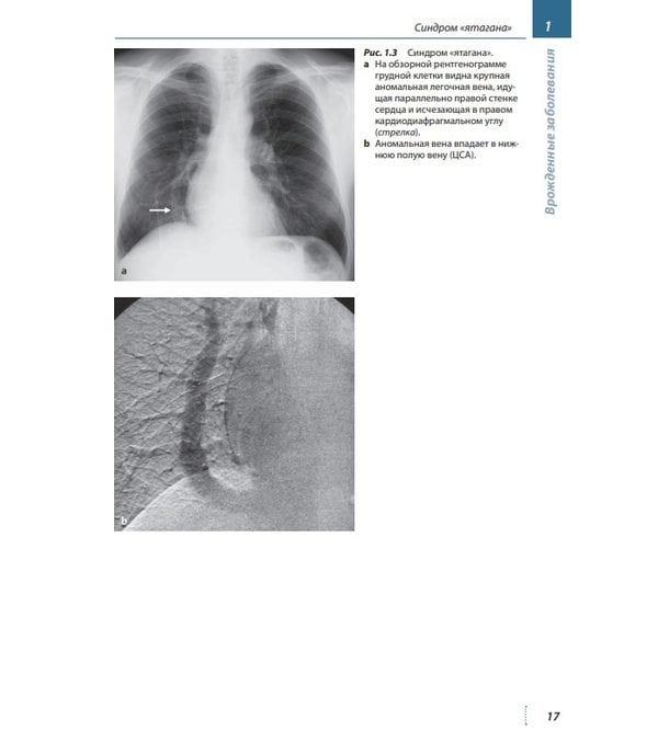 Лучевая диагностика. Желудочно-кишечный тракт