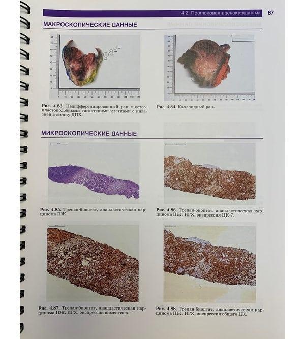 Патоморфологическая и лучевая диагностика хирургических заболеваний поджелудочной железы
