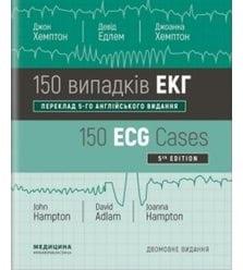 150 випадків ЕКГ=150 ECG Cases