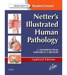 Netter's Illustrated Human Pathology