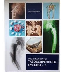 Очерки хирургии тазобедренного сустава