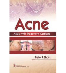 Acne Atlas with Treatment Options