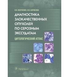 Диагностика злокачественных опухолей по серозным экссудатам