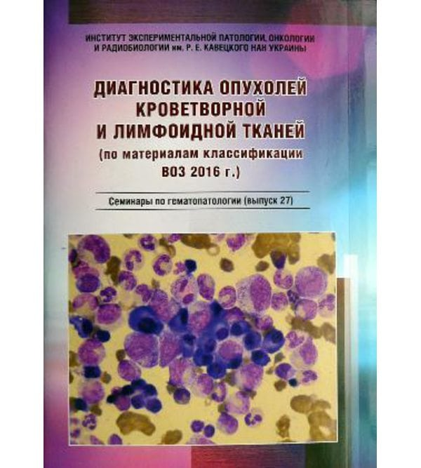 Диагностика опухолей кроветворной и лимфоидной тканей (по материалам классификации ВО..