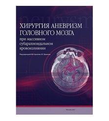 Хирургия аневризм головного мозга при массивном субарахноидальном кровоизлиянии