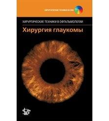 """Хирургия глаукомы + DVD (серия """"Хирургические техники в офтальмологии"""")"""