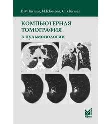 Компьютерная томография в пульмонологии