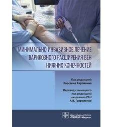 Минимально инвазивное лечение варикозного расширения вен нижних конечностей