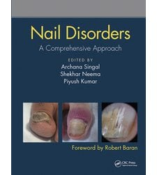 Nail Disorders. A Comprehensive Approach