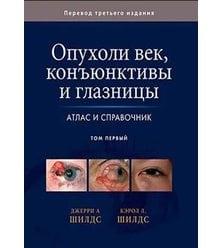Опухоли век, конъюктивы и глазницы. Атлас и справочник. Том 1