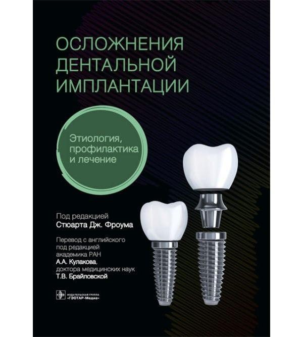 Осложнения дентальной имплантации. Этиология, профилактика и лечение