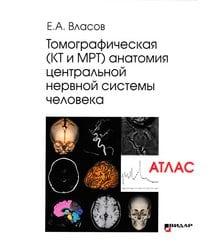 Томографическая (КТ и МРТ) анатомия центральной нервной системы человека. Атлас