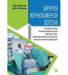 Хирургия желчнокаменной болезни: : лапароскопия, минилапароскопия, единый порт, транс..